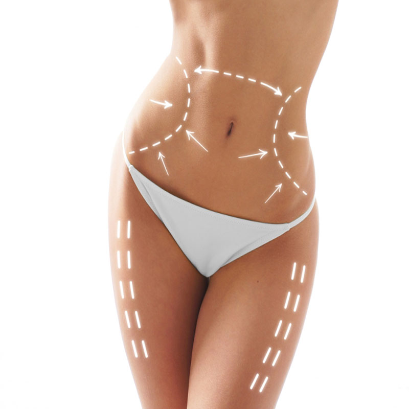 Liposuction surgery Vdodara